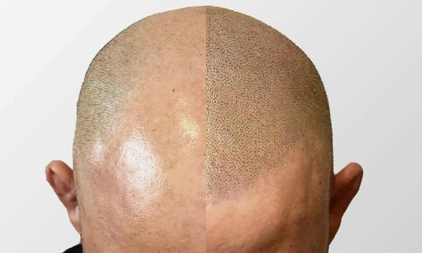 Scalp Micropigmentation Richmond Virginia